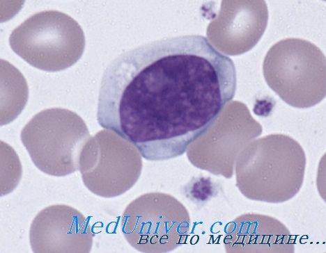Моноцитоза и лимфоцитоза. комплемент системот