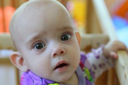Мукополисахаридозы у детей, 1,2,3 типа, лечение, диагностика, симптомы