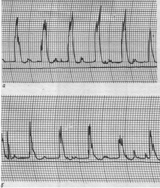 Dopplerograms stânga (a) și dreapta (b) a arterei oftalmice. Asimetria sub formă de variația amplitudinii vitezei fluxului sanguin liniar cu o scădere în artera oftalmică sa dreaptă
