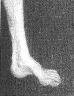 picior gol