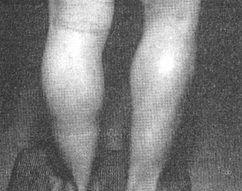 gambe Psevdogipertrofiya