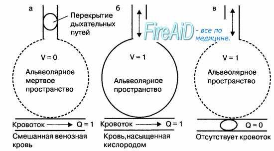 феталниот скрининг