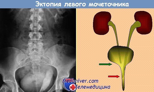 ureterului ectopic