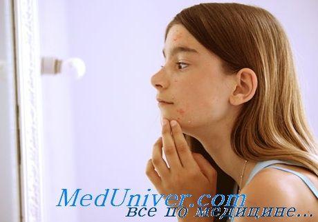Оценка полового развития девочек. Сбор анамнеза и осмотр