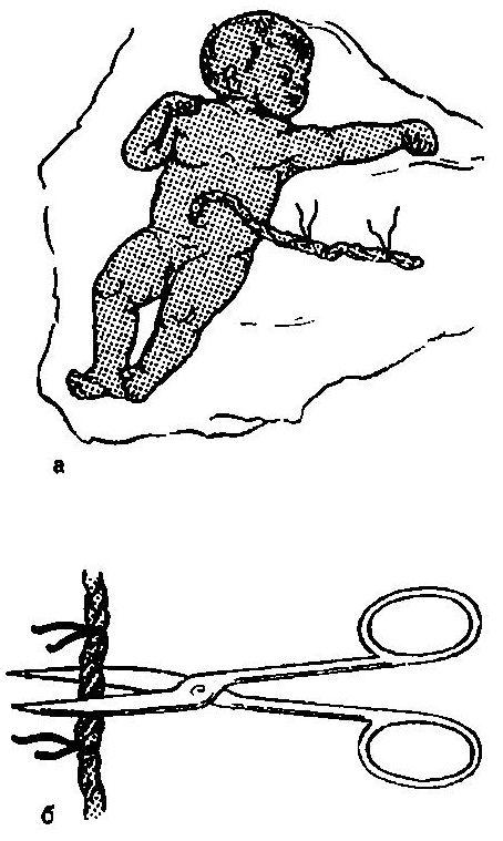 Лигатура (а) и пресекот на кабелот (б)