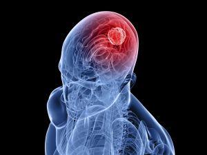 Опухоль головного мозга, симптомы, лечение, причины