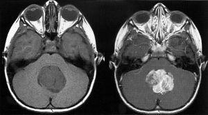 Опухоль головного мозга у детей: симптомы, признаки, причины, лечение