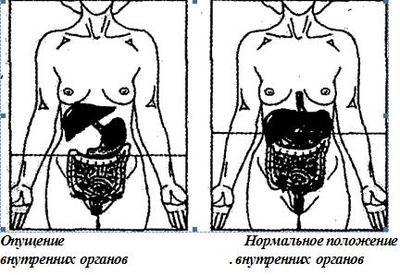 Gastroptóza výhřez žaludku