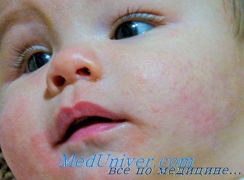 Осложнения атопического диффузного дерматита. Прогноз диффузного нейродермита