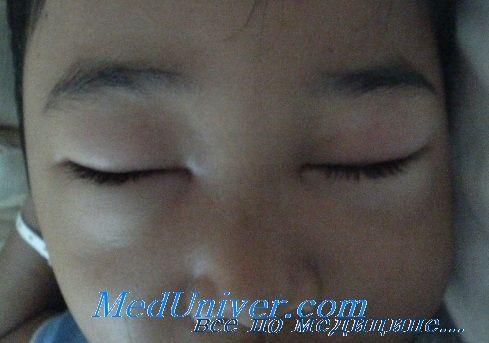 Осложнения нефротического синдрома у детей. Прогноз