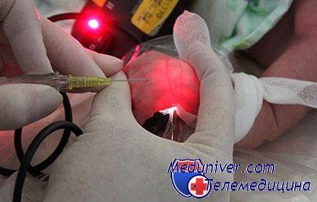 Na co se zaměřit při instalaci periferního žilního katétru u dítěte?