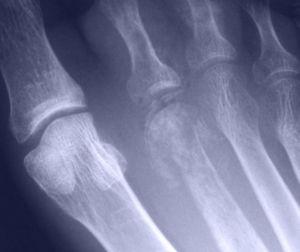 Osteomielita osoase: tratament, simptome, diagnostic, simptome, cauze