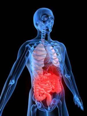 Akutna krvavitev iz spodnjega gastrointestinalnega trakta