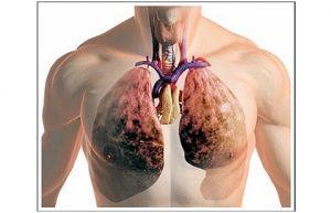 Akutna miliarnega tuberkuloza