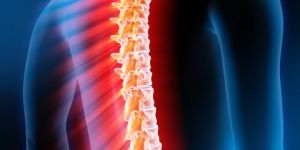 Akutna transverzni mielitis, hrbtenjače: zdravljenje, prognoza