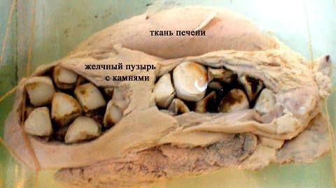 Панкреатитис и камења во жолчката