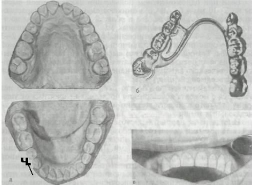 ortopedicheskaya_stomatologia_95.JPG