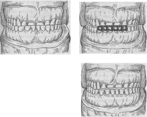 ortopedicheskaya_stomatologia_96.JPG