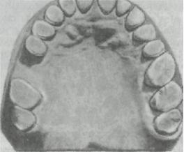 ortopedicheskaya_stomatologia_88.JPG