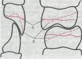 ortopedicheskaya_stomatologia_89.JPG