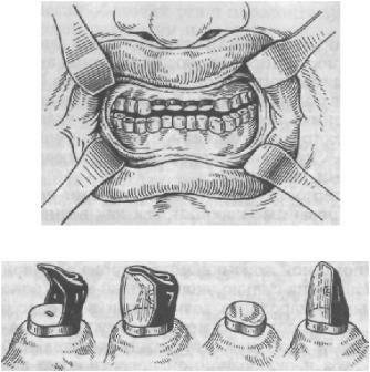 ortopedicheskaya_stomatologia_91.JPG