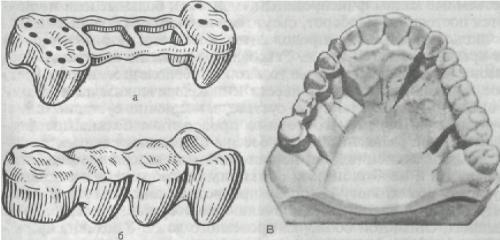 ortopedicheskaya_stomatologia_92.JPG