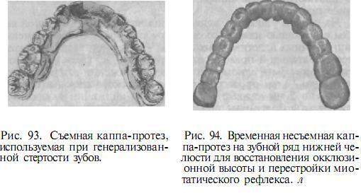 ortopedicheskaya_stomatologia_94.JPG