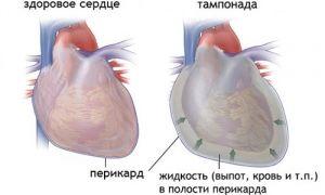 efuziune pericardică și tamponadă cardiacă