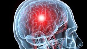 Primarni limfom mozga