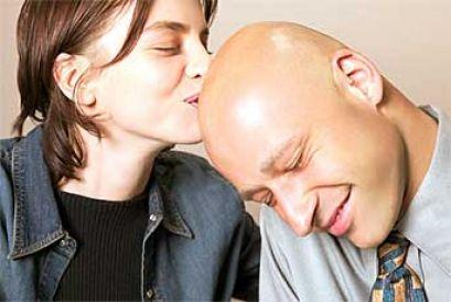 Plešatost, léčba alopecie