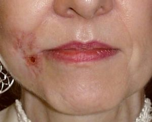 cancer de piele scuamos: stadiu, prognostic, tratament, prognostic, simptome, cauze, simptome