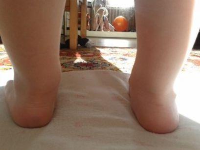 Плосковальгусная стопа у детей, лечение