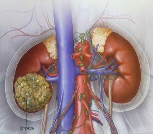 carcinom cu celule renale: tratament, simptome, cauze, simptome