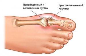 Dnavá artritida kloubů: léčba, příznaky, znaky, příčiny