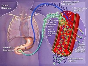 Панкреасот кај дијабетес мелитус
