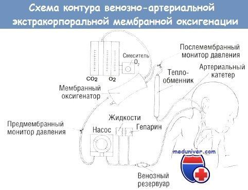 Schéma smyčka mimotělní membránové oxygenace (ECMO)