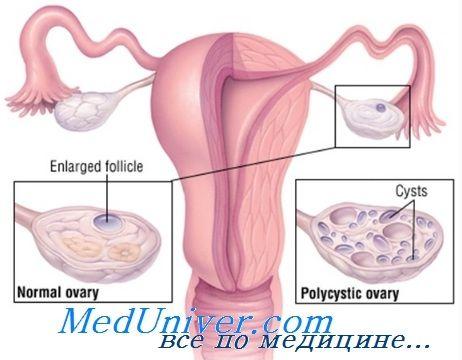 Преждевременная недостаточность яичников. Причины раннего бесплодия