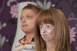 Прогерия у детей: симптомы, лечение, причины