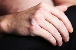 Psoriatické artropatie, léčba, příznaky, znaky, příčiny