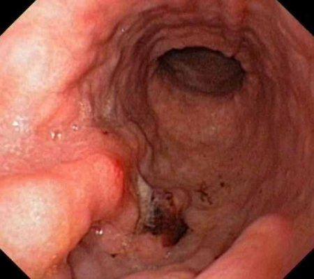 Rakovina žaludku je nádorové onemocnění její příznaky, symptomy, příčiny, diagnostika a léčba, foto a video