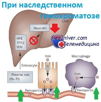 обмен железа при наследственном гемохроматозе - болезни накопления железа