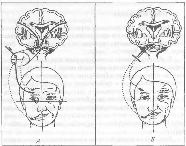 pareza nervului facial