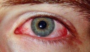 Синдром красного глаза: лечение