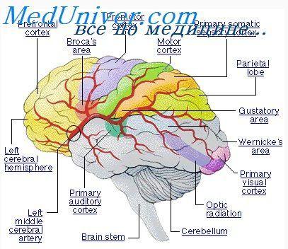 МРТ при синдроме Миллера-Дикера