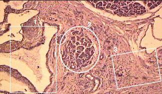 Склероза на панкреасот