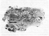 Стромални компоненти панкреасот
