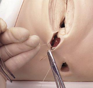 Как избежать разрывов во время родов. Подготовка промежности к родам, лечение последствий. Готовимся к родам без разрывов