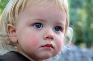 Как вылечить детский диатез. Советы опытных педиатров.