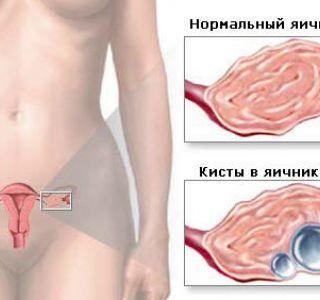 Какие бывают кисты яичников и как их лечить. Киста яичника причины возникновения. Диагностика кисты яичника.