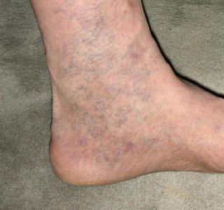 Вены на ногах после родов. Отечность ног после родов. Варикозное расширение вен - причины возникновения.